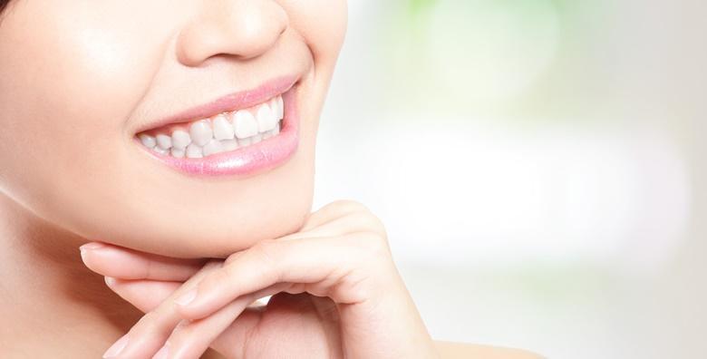 Izbjeljivanje zubi - Xwhite visible tretman