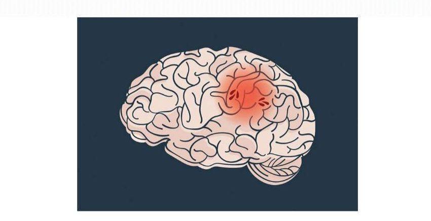 """Simpozij """"Smanjimo čimbenike rizika za nastanak moždanog udara"""""""